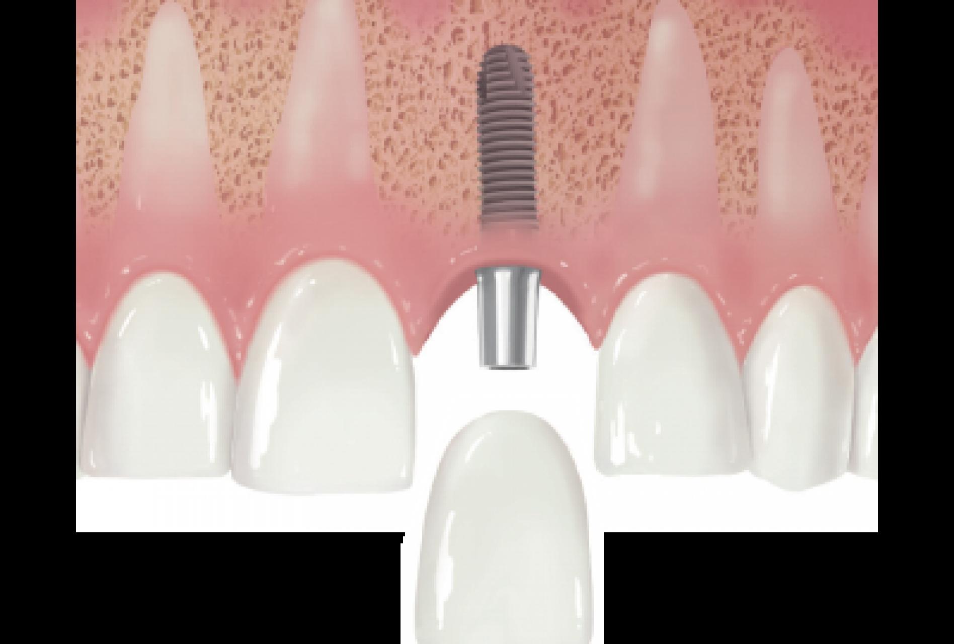 Dental Implant Nedir?