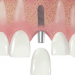 Dental Implant Nedir?