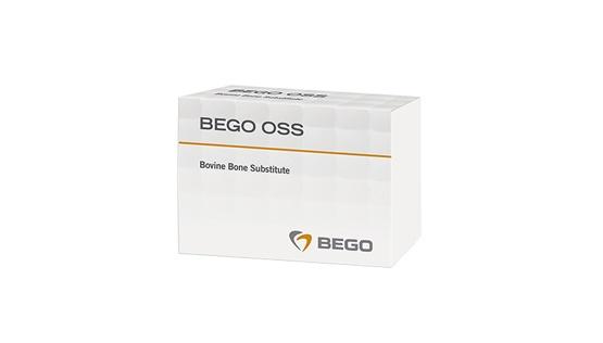 BEGO OSS