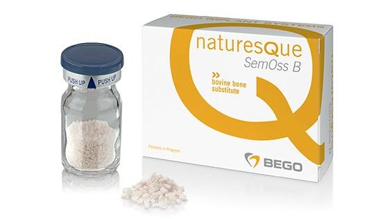 NaturesQue SemOss B